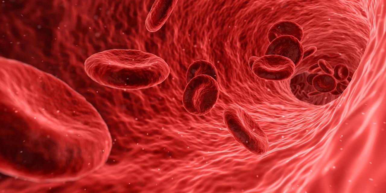 choroby układu krwionośnego